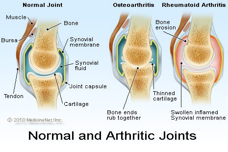 Can Image Analysis Help in the Fight Against Osteoarthritis 3